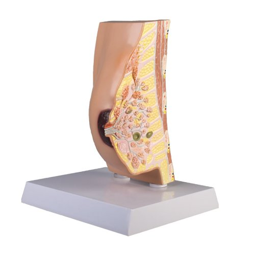 Breast cross section model with diseases