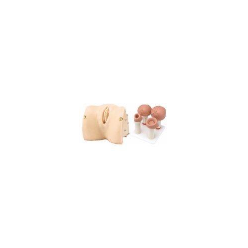 Geburtsstadien - Modul