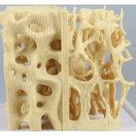 Vergleichs-Modell gesunde / osteoporotische Knochenstruktur