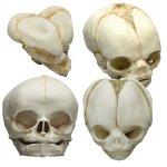 Fetal skulls 13-40 weeks