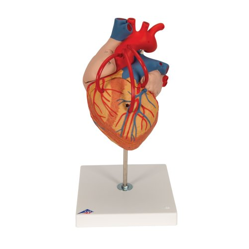Heart Model with Bypass, 2x magnified, 4 part - 3B Smart Anatomy