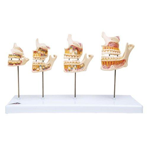 Dentition Development Model - 3B Smart Anatomy