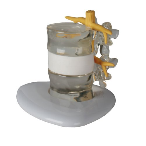 Herniated disc simulator