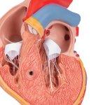 Herz-Modell mit linksventrikulärer Hypertrophie, 2-tlg - 3B Smart Anatomy