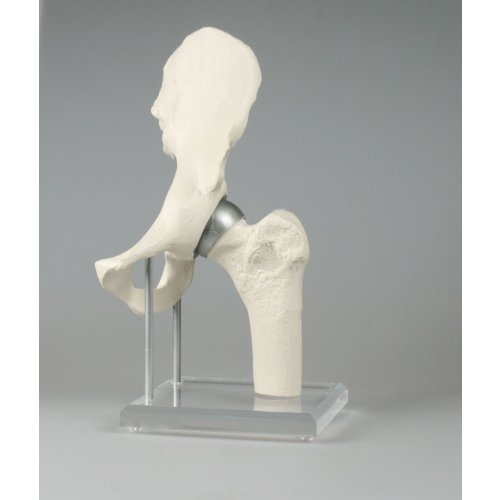 Hüftgelenk-Modell mit Schalenprothese