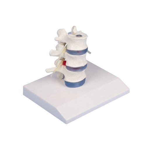 Lendenwirbel-Modell mit Bandscheibenvorfall und Stativ