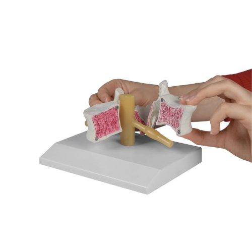 Osteoporosis vertebra, 2 times life-size
