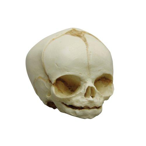 Fetal skull 31 weeks