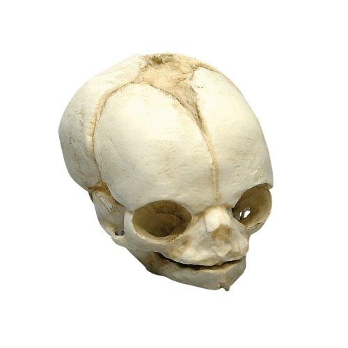 Fetal skull 21 ½ weeks