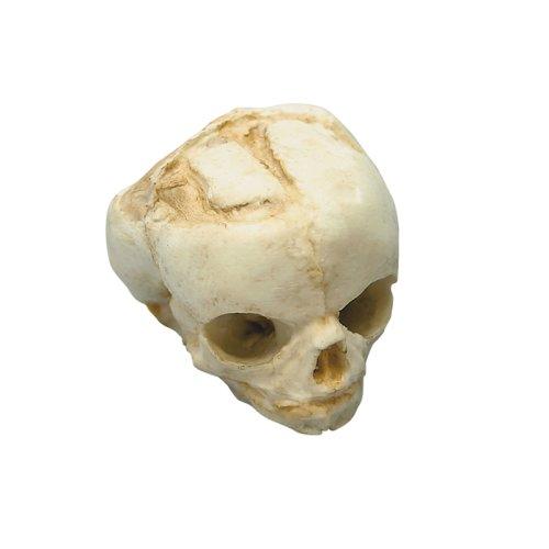 Fetal skull 17 weeks