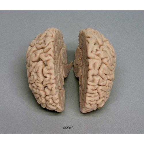 Human brain model, actual cast
