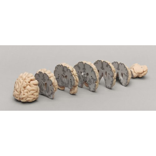 Human brain model multiple frontal sections