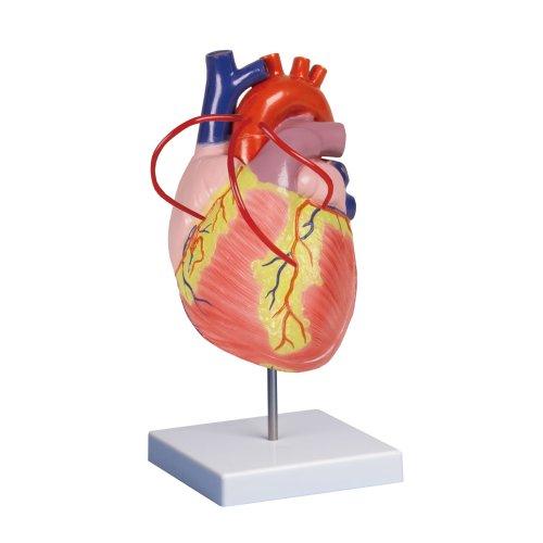 Herz-Modell mit Bypass, 2-fache Größe, 2-tlg