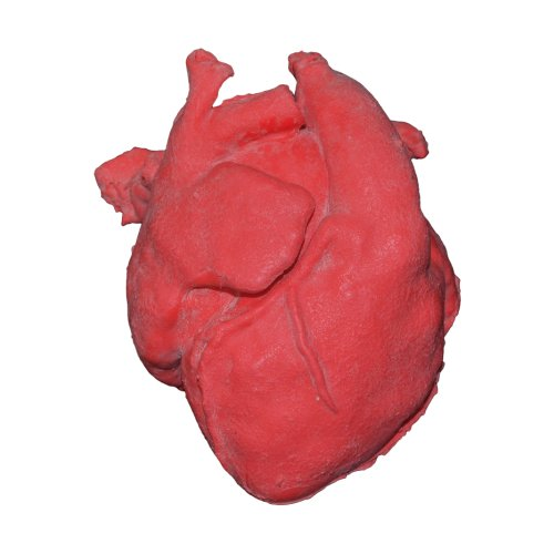 Pediatric heart model with corrected transposition of great arteries and ventricular septal defect (vsd)