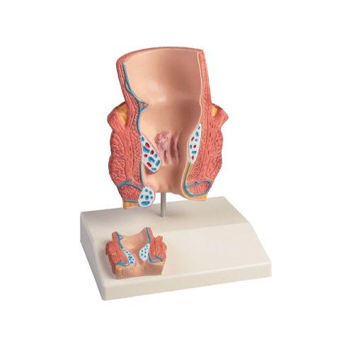 Haemorrhoids model